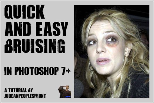 Quick and Easy Bruising by JudeanPeoplesFront