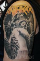 anthrax by mange