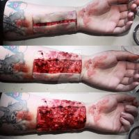 Surgical Incision. by Makeupbyashh