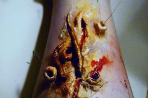 Giant leeches in wound. by Ryo-Says-Meow