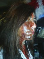 My Burnt Face__Halloween 09 by mrs-voorhees09