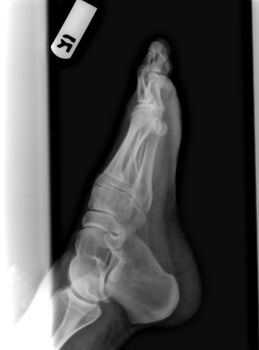 Right Foot X-Ray 3 of 3 by dull-stock