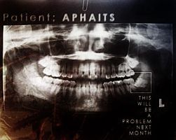 It's dentist's time to rock by aphaits