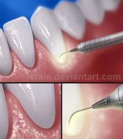 Laser Periodontal Therapy by Ivraie