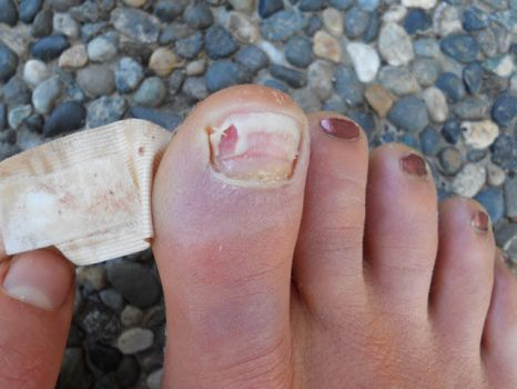 ToeNail 42 FellOff by FootFetishGuy1961